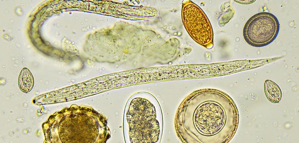 Jak żywiciel broni się przed pasożytem?